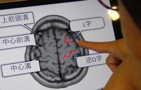 高次脳機能障害とは?