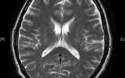 誤解されやすい病気「高次脳機能障害」とは?